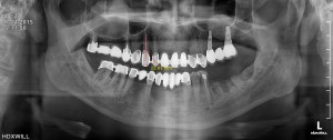 rentgenologiniai tyrimai