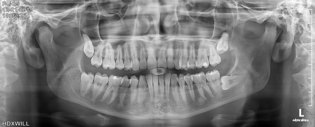 Panoramine rentgeno nuotrauka